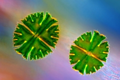 67. Desmid (Micrasterias apiculata)