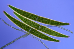 84. Desmidie (Closterium sp.) / Desmids (Closterium sp.)
