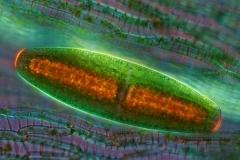 112. Desmid (Netrium) pomiędzy listkami torfowca / Netrium (desmid) between Sphagnum leaves