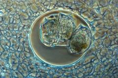 16. Słonecznica z pożartym wrotkiem / Heliozoan with ingested rotifer