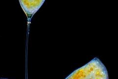18. Sysydlaczki (Suctoria) osiadłe na okrzemce (Fragilaria sp.) / Suctorians settled on diatom (Fragilaria sp.)