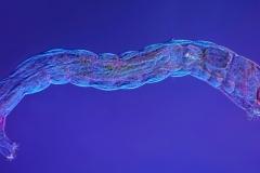 30. Larwa muchówki / diptera larval stage
