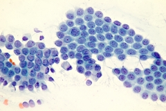 8. Cytologia szyjki macicy / Cervical cytology